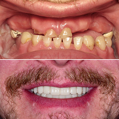 Before and after photo of a real dental implants patient at River Valley Dental.